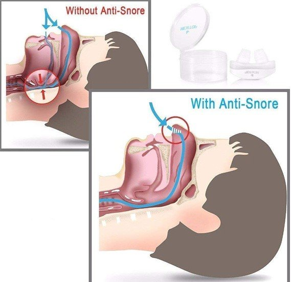 2 in 1 Bundle Offer T&F Advanced Anti Snoring And Sleep Device